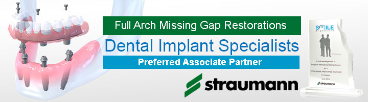 Thailand Dental Implants