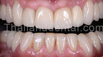 Case Crowns