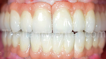 Case Implant All-On-4
