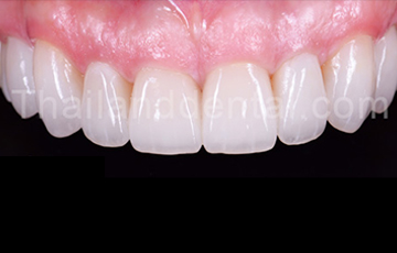 Case Tooth Whitening